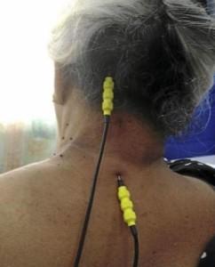 Pain Treatment Malaysia