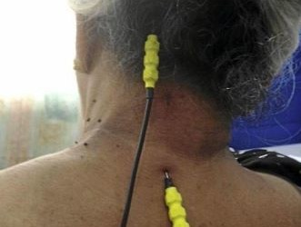 Chronic pain sufferers have a new option for treatment in PENS.